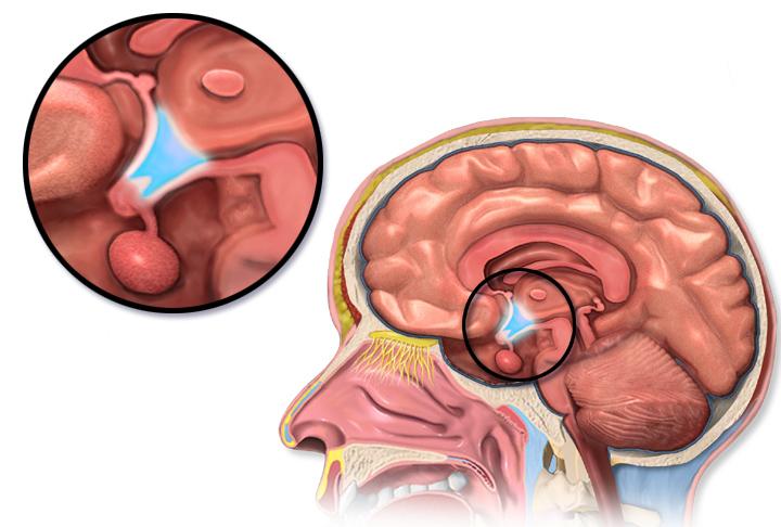 image of brain showing hypothalamus