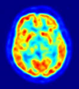 PET scan of a brain